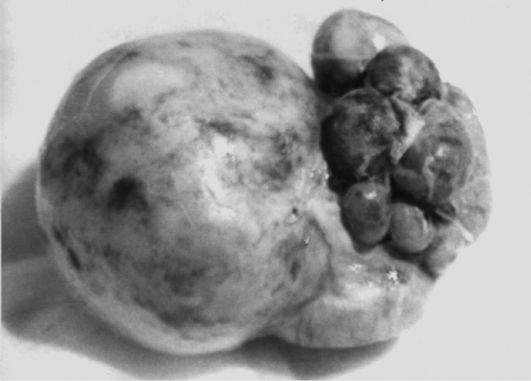Макропрепарат удаленной нефункционирующей гидронефротически измененной почки, в которой практически отсутствует паренхима, видна эмбриональная дольчатость и огромная лоханка внепочечного типа